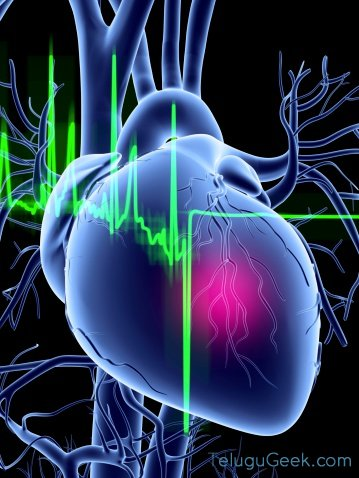 CardioMEMS – వృద్ధులకు తోడుగా..