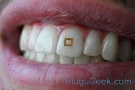 Miniature Tooth sensor