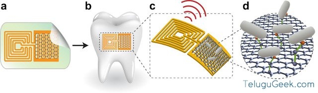 Miniature Tooth sensor - how it works